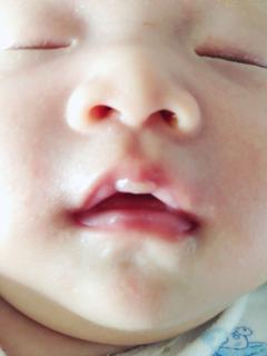 宝宝嘴巴皮上面起泡了,是什么情况啊
