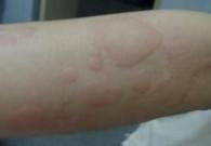 【医治宝宝过敏性皮炎】小儿过敏性皮炎,小孩皮肤过敏怎么办?
