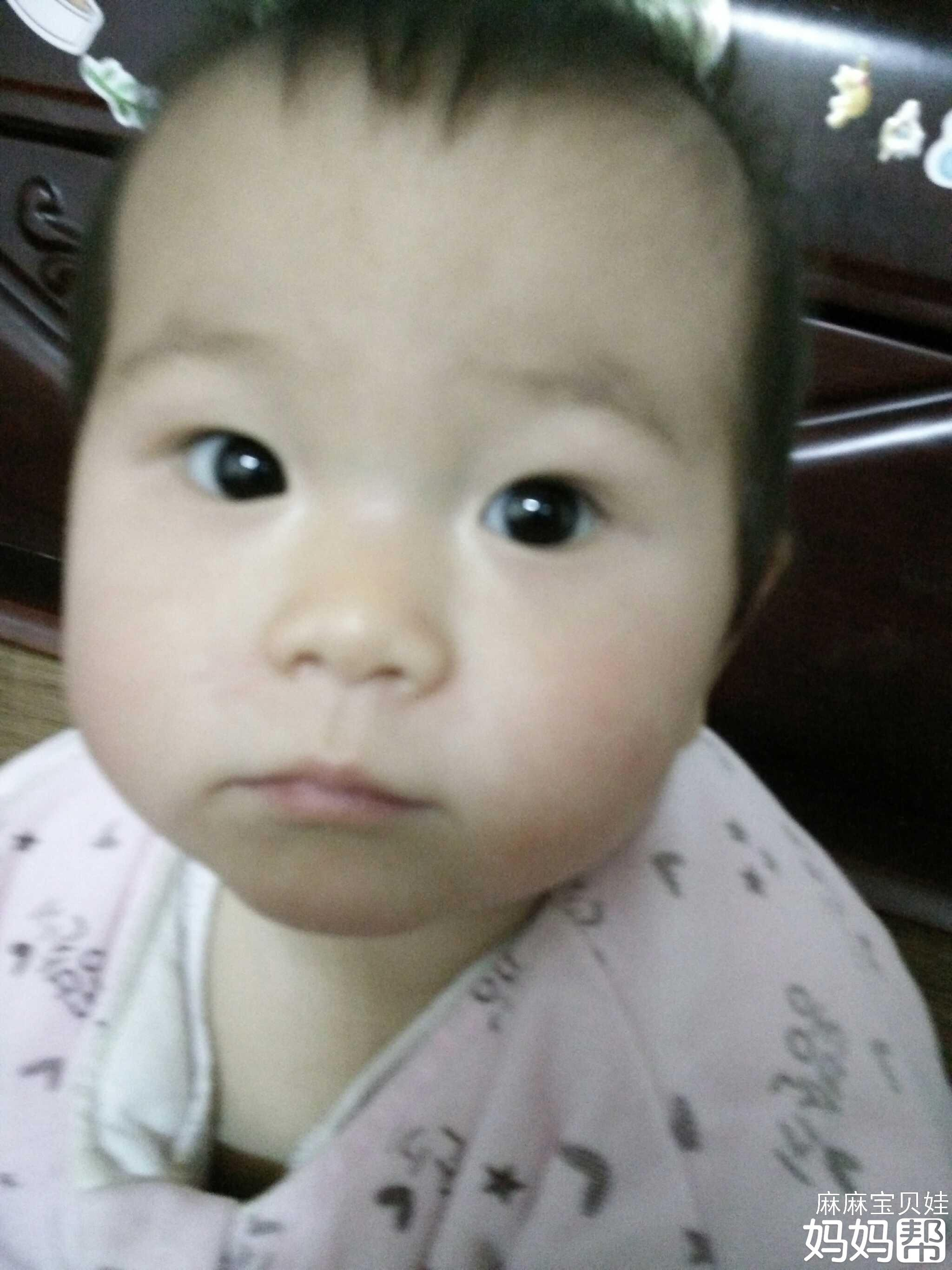 宝宝感冒流鼻涕,擦的鼻子两边有小红疙瘩是湿疹吗?