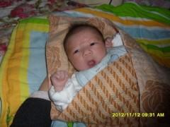 求助,MM们看看我宝宝是长湿疹还是痱子啊,脸上的小米米越来越多了