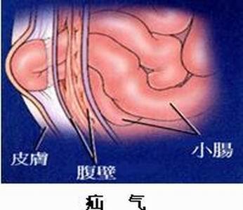 新生儿女宝宝疝气症状