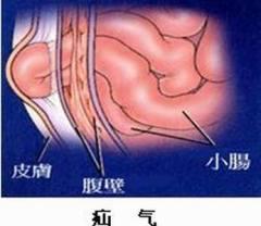 小儿疝气的症状有哪些?如何治疗小儿疝气?有好的偏方吗?
